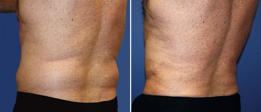 liposuction-male-19584c-berks