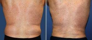 liposuction-male-19584d-berks