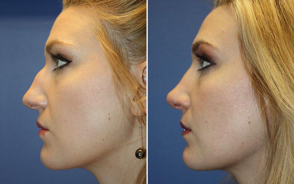 Nose Surgery Patient 7