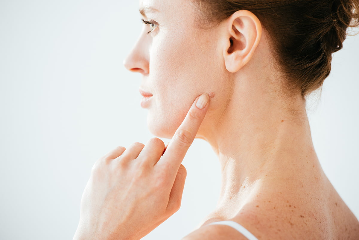 Woman pointing to mole on face