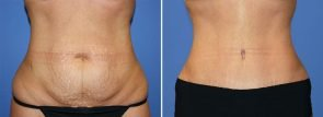 abdominoplasty-20543a-2-berks