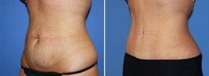 abdominoplasty-20543b-2-berks