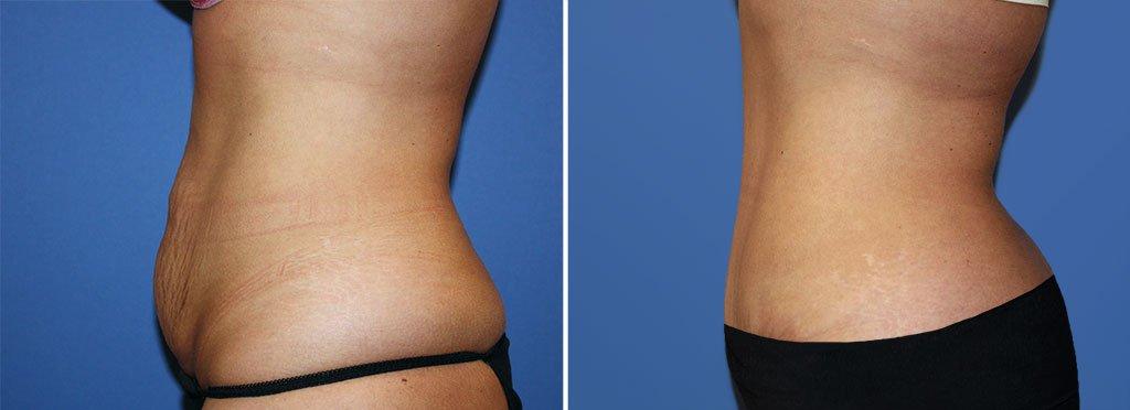 abdominoplasty-20543c-2-berks