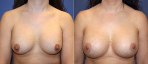 breast-implant-revision-20550a-berks