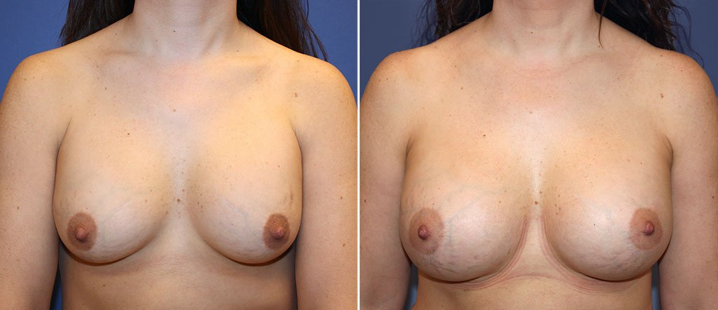 Breast Implant Revision Patient 11