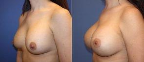 breast-implant-revision-20550b-berks