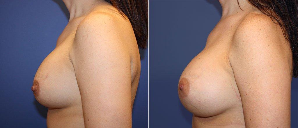 breast-implant-revision-20550c-berks