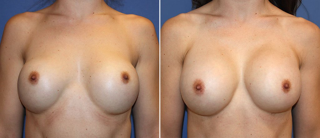 Breast Implant Revision Patient 12