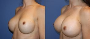 breast-implant-revision-20557b-berks