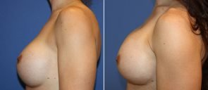 breast-implant-revision-20557c-berks