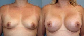 Breast Augmentation Patient 96