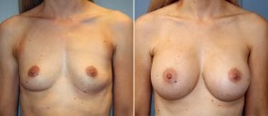 Breast Augmentation Patient 97