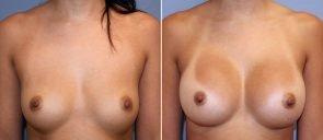 Breast Augmentation Patient 98