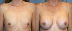 Breast Augmentation Patient 99