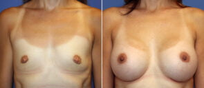 Breast Augmentation Patient 100