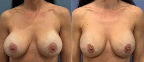 Breast Implant Revision Patient 13