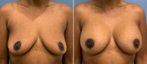 Breast Augmentation Patient 101