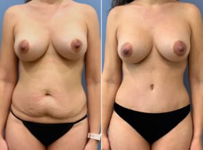 Mommy Makeover Patient 43